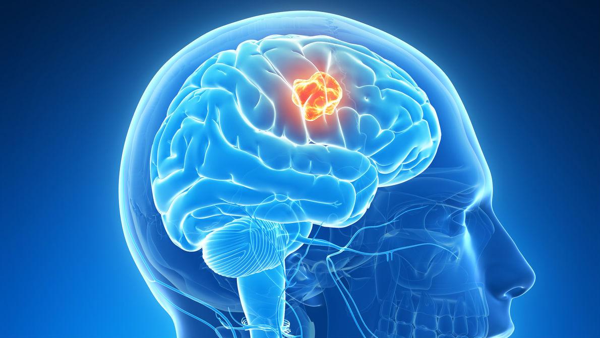 Лечение эпилепсии у взрослых и детей