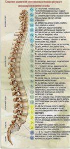 заболевания позвоночника и эпилепсия